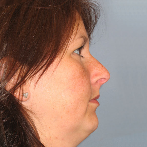Chin Implants | Charleston Facial Plastic Surgery | Dr  Funcik