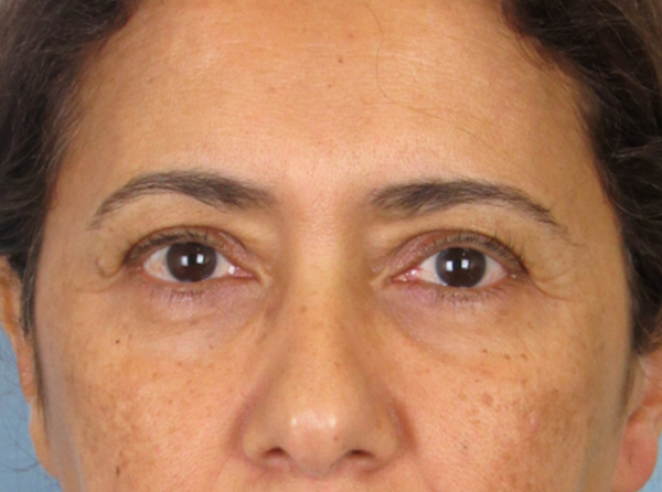 Blepharoplasty or Eyelid Lift | Charleston Facial Plastic Surgery