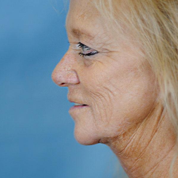 Charleston Neck Lift | Charleston Facial Plastic Surgery | Thomas