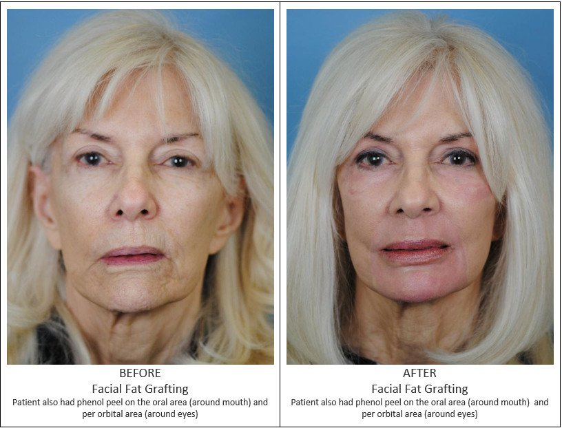 Before and After Treatment Photos - Facial Fat Grafting - female patient, front view. Patient also have phenol peel on the oral area (around mouth) and per orbital area (around eyes)