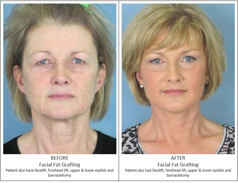 Before and After Treatment Photos - Facial Fat Grafting - female patient, front view. Patient also have facelift, forehead lift, upper and lower eyelids and barnacletomy